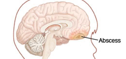 brain_abscess